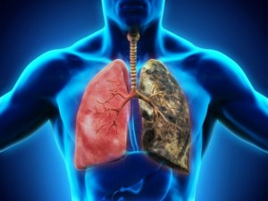 Cancer_pulmon